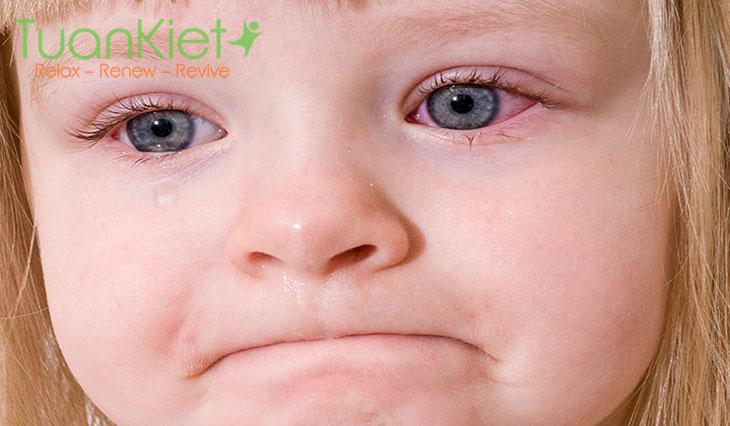 Triệu chứng và cách chữa bệnh đau mắt đỏ hiệu quả